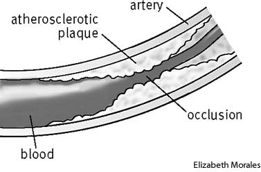 atherosclerosis | define atherosclerosis at dictionary, Cephalic Vein